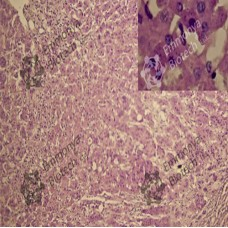HARRIS'S HAEMATOXYLIN for Papanicolaou staining
